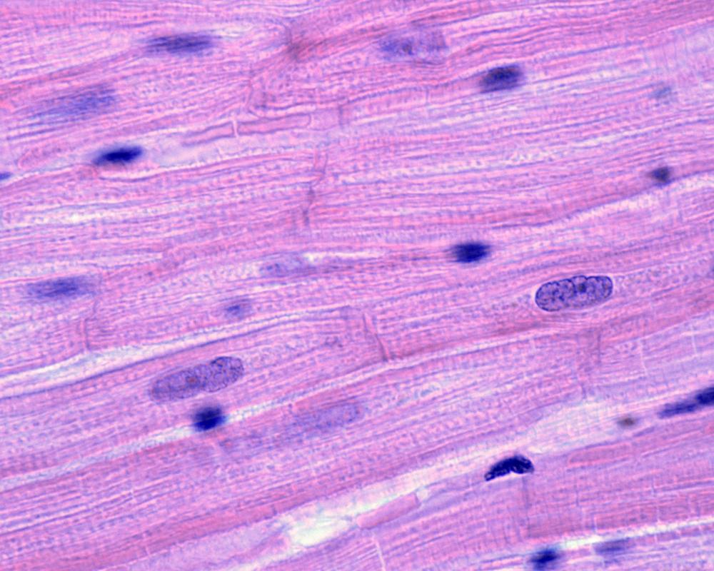Micrographie de quelques fibres musculaires du tissu musculaire cardiaque