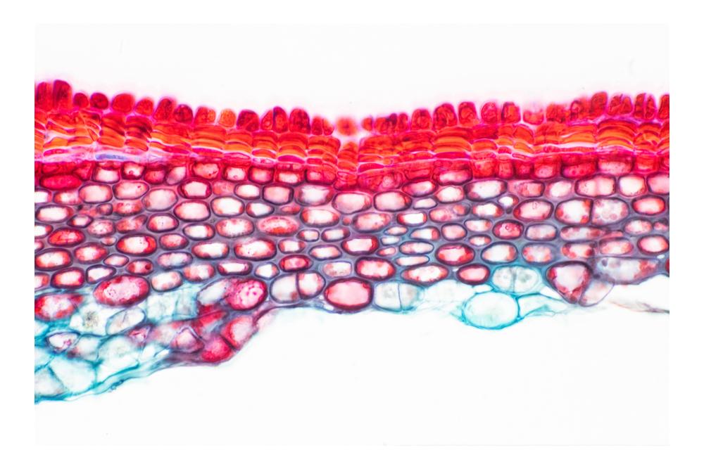 تركيب النسيج الإسكلرنشيمي