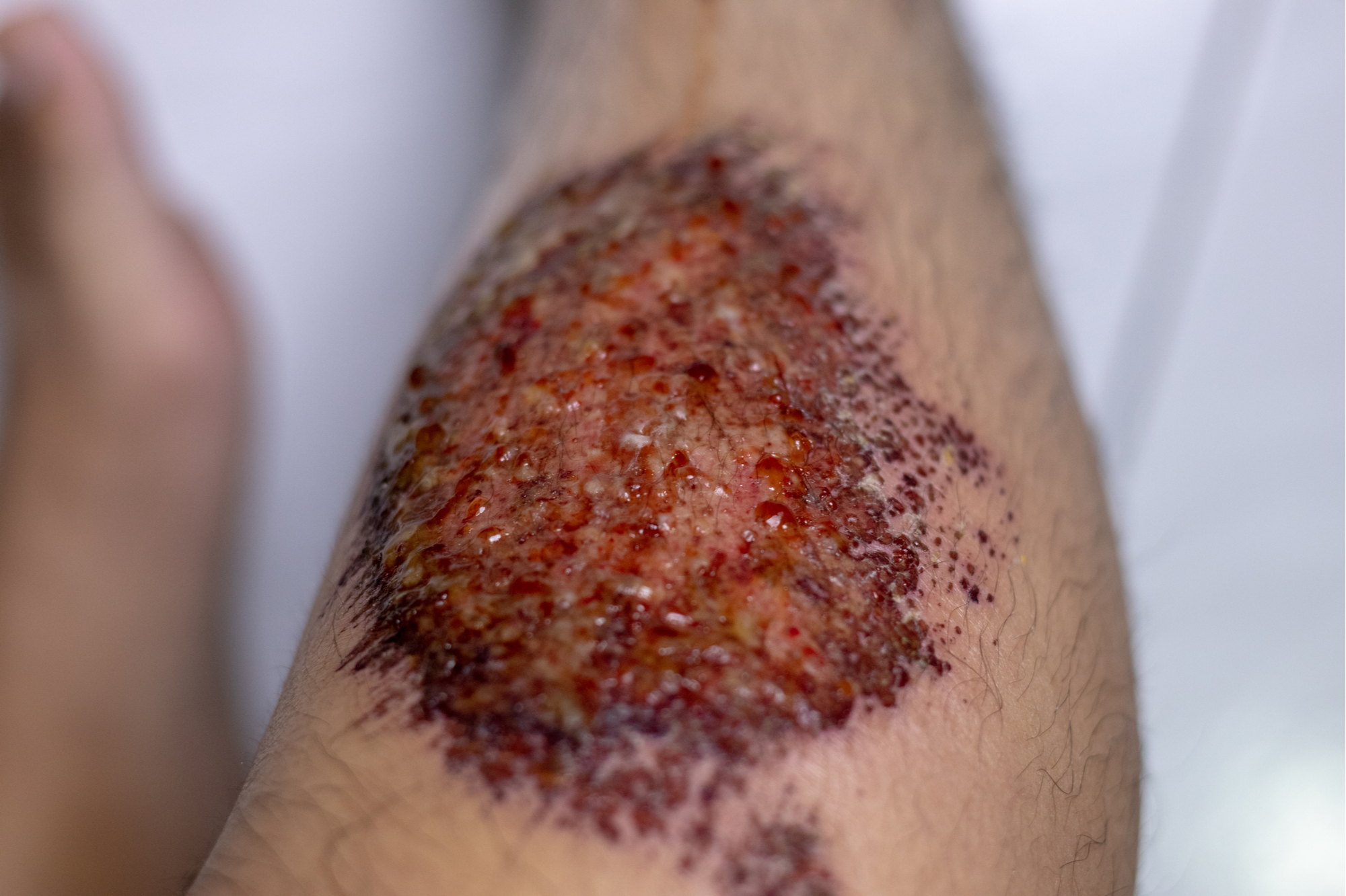 Wound inflicted
