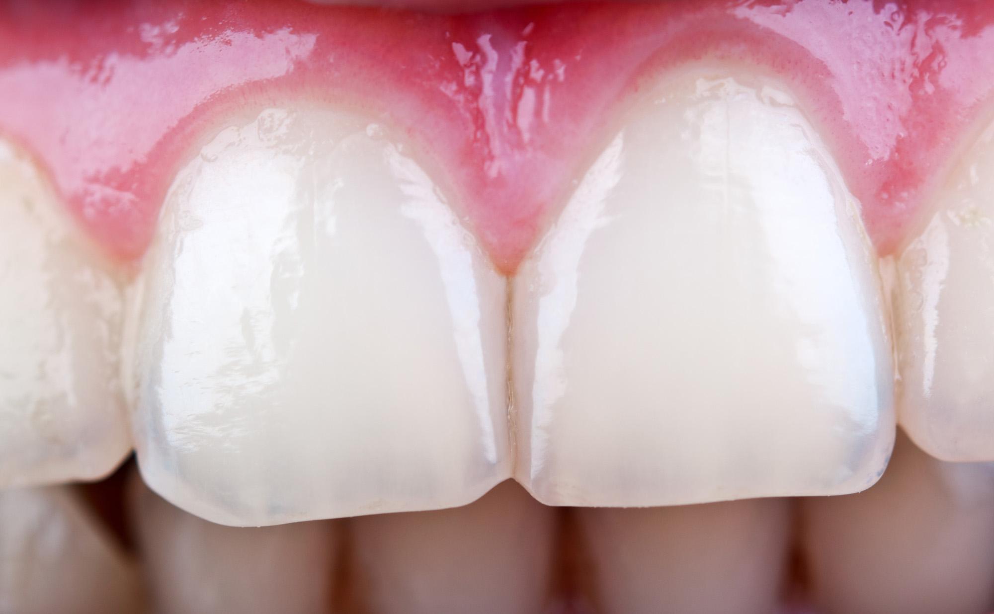 أسنان امرأة
