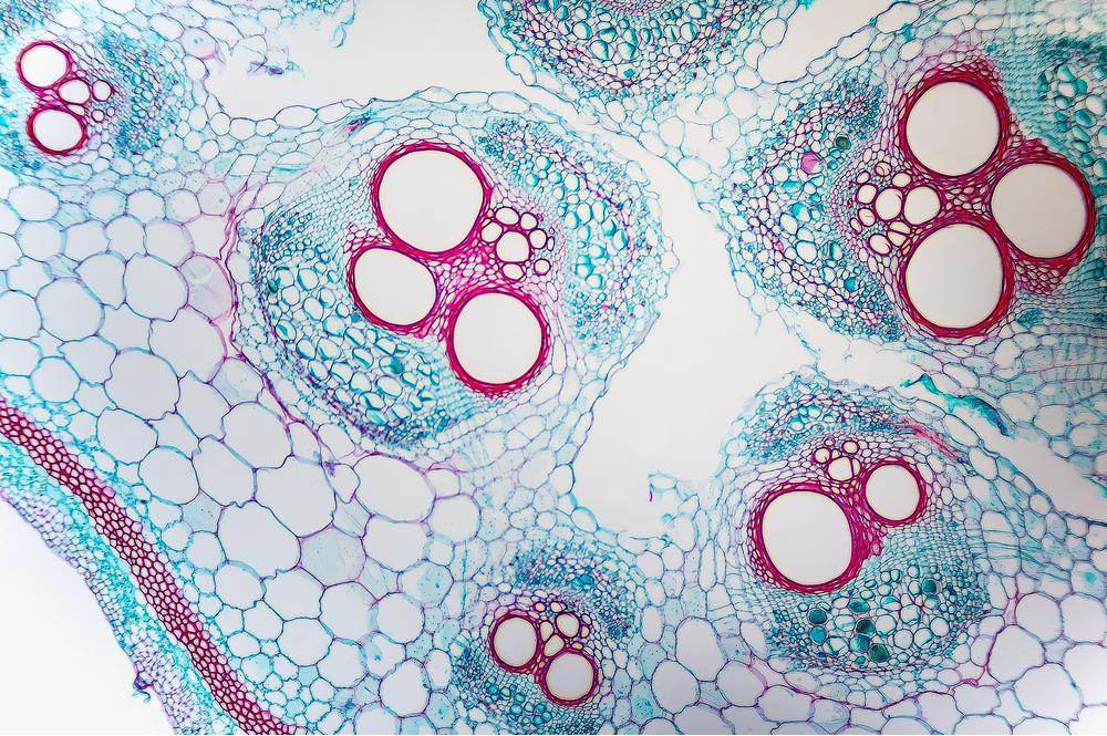 خلايا الأنسجة - مقطع عرضي للقرعيَّات، جذع (اليقطين)