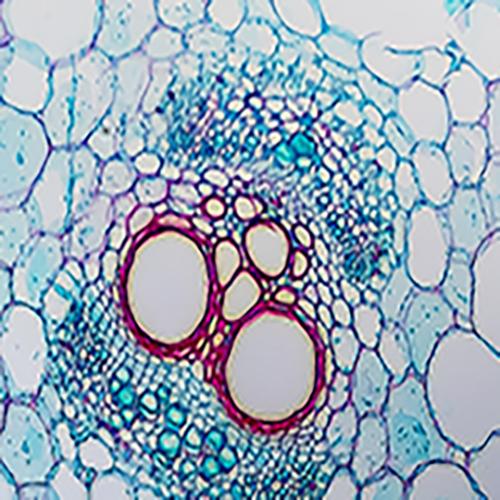 حزمة الأوعية الدموية
