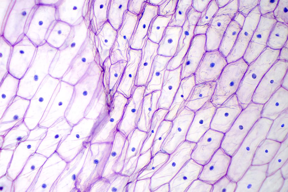 قشرة بصل تحت ضوء المجهر