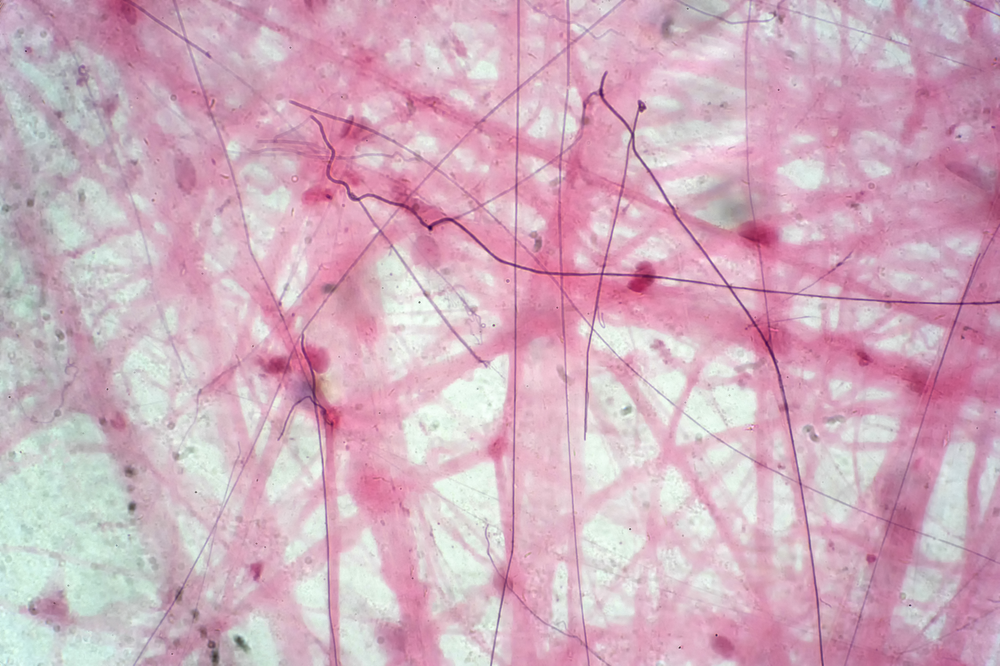 Areolar connective tissue