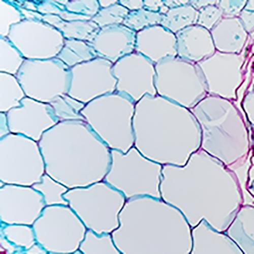 خلايا النسيج البرنشيمي